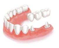 歯を1本失った場合 従来の治療方法