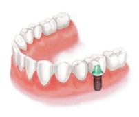 歯を1本失った場合 インプラント