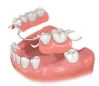歯を数本失った場合 従来の治療方法 部分入れ歯