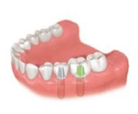 歯を数本失った場合 インプラント